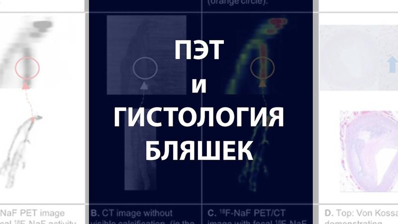 ПЭТ КТ с 18F NaF и гистология атеросклеротических бляшек