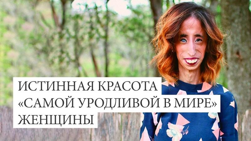 Истинная красота самой уродливой в мире женщины История Лиззи Веласкес