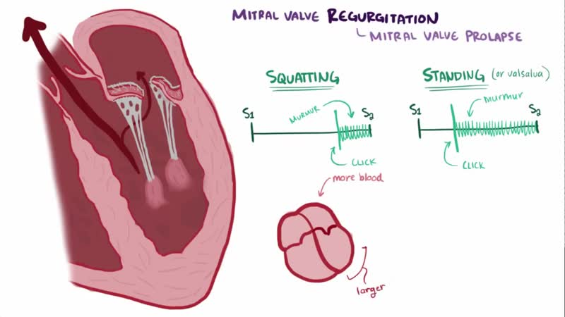 Mitral valve disease regurgitation stenosis causes symptoms pathology