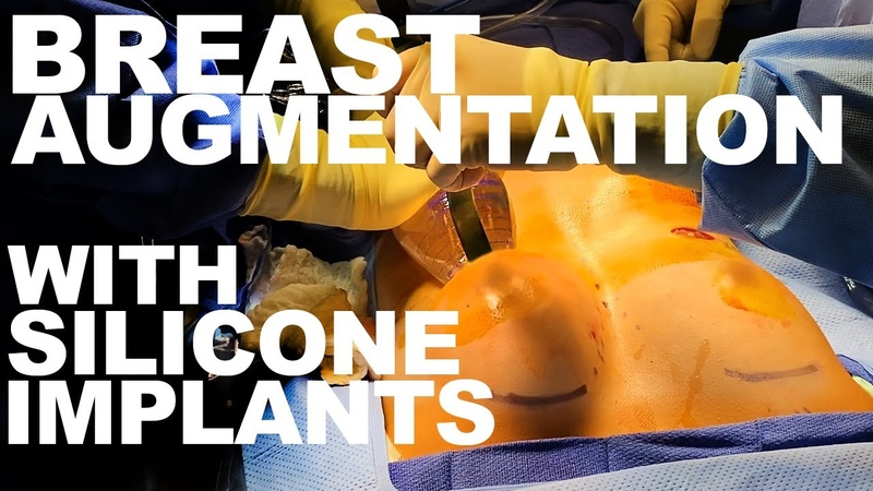 Breast Augmentation with Silicone Implants - Dr. Paul Ruff | West End Plastic Surgery
