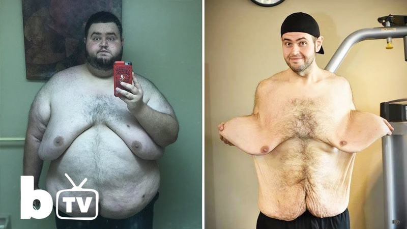 My 300lbs Weight Loss Left Me With 13lbs Of Loose Skin