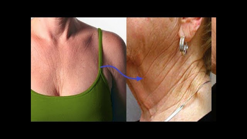 Remedios Naturales Para Borrar Las Arrugas Del Pecho y El Cuello