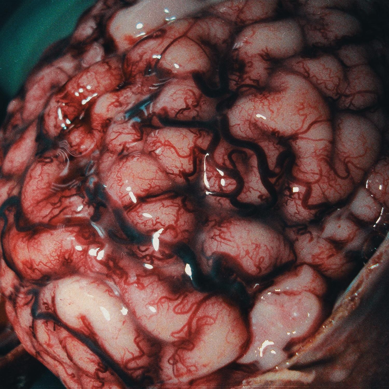 Красота мозга