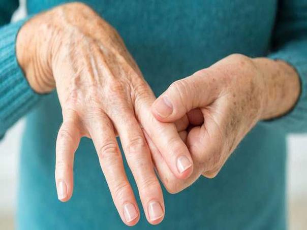 Ранние признаки и симптомы ревматоидного артрита